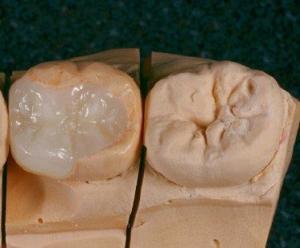 Cirkon Inlay Fogászat Budapest Hegedűs Dental Allergiamentes Pótlás