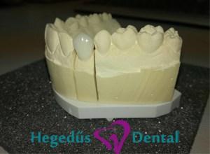 cirkonium, cirkon, cirkon korona, hegedus dental