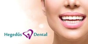 cirkon korona, mosoly, hegedus dental