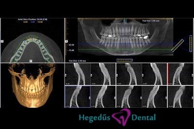 CT-Hegedus-Dental-fogaszat-CBCT