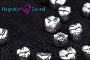 femkeramia, femkeramia korona, fogorovos, Hegedűs Dental, fogászat