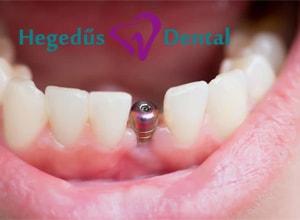 mufoggyoker, foggyoker beultetes, fogaszat, hegedus dental, fogimplantacio
