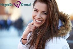 hegedus dental, fogtomes, mosoly