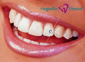 fogekszer, fogekszer felhelyezes, Hegedus Dental