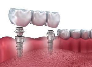 fogimplantáció, implantáció, fogászat