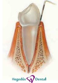fogingyulladas kezelese, foginygyulladas, hegedus dental