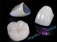 femkeramia korona, fogaszat, hegedus dental