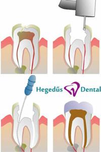 hegedus dental, fogaszat, fogaszati gyokerkezeles