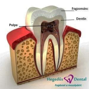 fog reszei, fog, emberi fog, fogászat, Hegedűs Dental