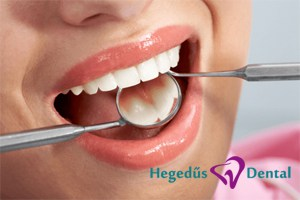 hegedus dental, fogaszat, budapest, fogtomes ellenorzese