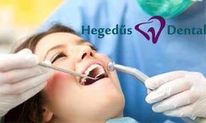 fogtomes-hegedus-dental-kezeles