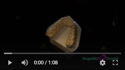 cirkon korona gyartas, CAD/CAM technologia, hegedus dental rendelojeben cirkon gyartas
