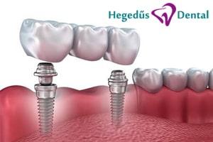 potlas, hegedus dental, fogaszat, implantacio