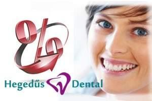ingyenes szolgáltatások, ingyenes fogászati szolgáltatások