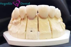 esztetikus hej, porcelan hej, hegedus dental